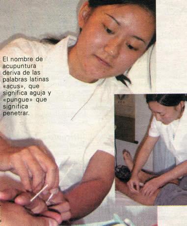 El arte de sanar con agujas