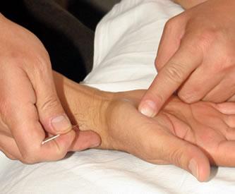 Tratamiento de acupuntura
