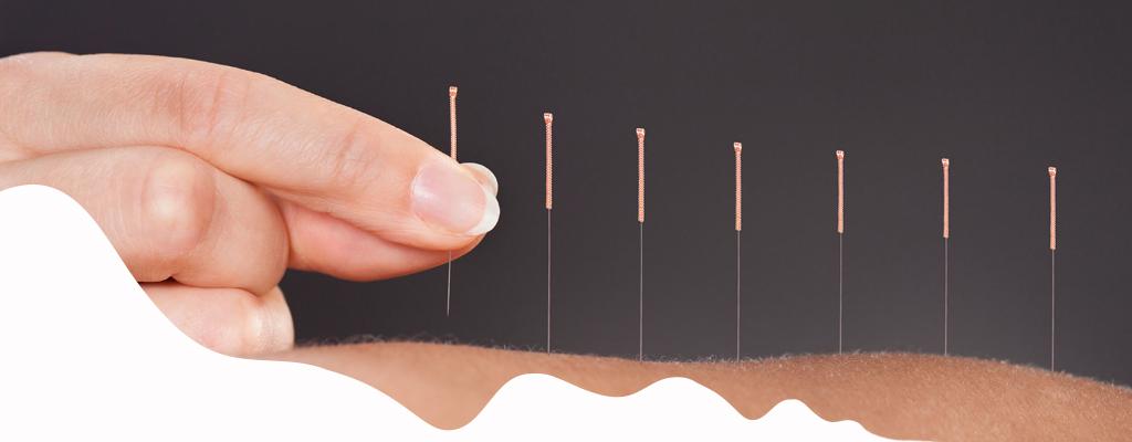 El arte de sanar con agujas - acupuntura - Medicina tradicional China