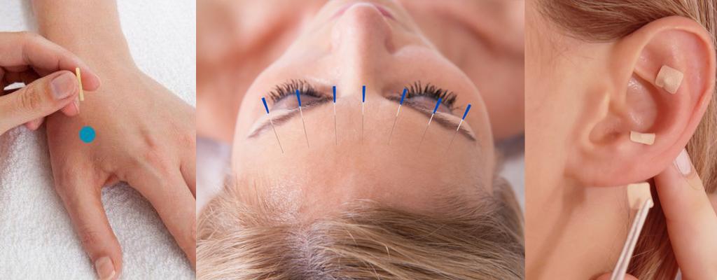 Enfermedades, tratamiento con acupuntura - medicina tradicional china